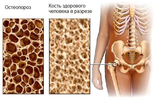 Здоровая кость и при остеопорозе
