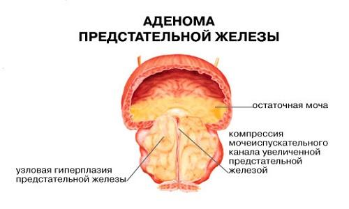 Иллюстрация 2