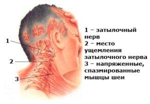 Сдавленный нерв