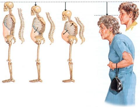 Развитие остеопороза у женщин