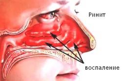 Ринит как симптом диффузного бронхита
