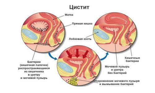Так как мочеиспускательный канал располагается вблизи анального отверстия, у девушек возникают воспалительные процессы, вызванные кишечной палочкой