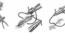 Этапы накладывания шва после операции