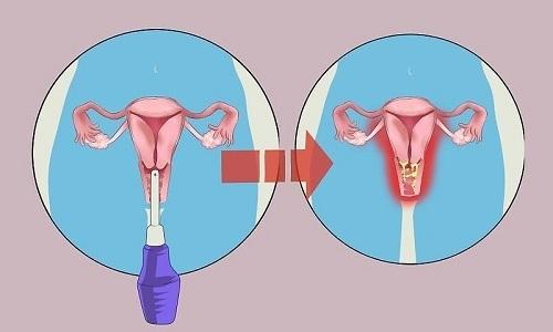 Спринцевание - процедура, в процессе которой женские половые органы орошаются различными отварами и лекарственными растворами