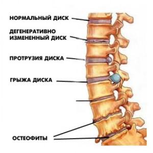 Стадии разрушения позвоночника при остеохондрозе