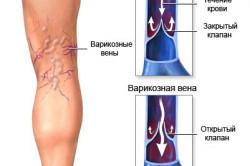Венозная тромбоэмболия ног