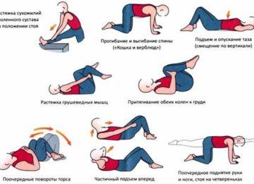 Физические упражнения при радикулите