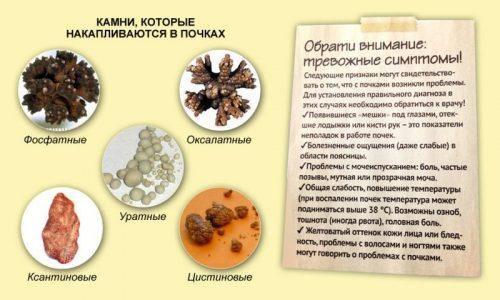 Виды камней и симптомы мочекаменной болезни