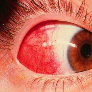Воспаление глазных яблок