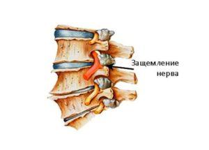 Как вылечить защемление нерва в шейном отделе, эффективные упражнения